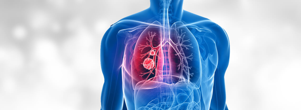 Advanced Treatments for Lung Cancer at Affordable Cost