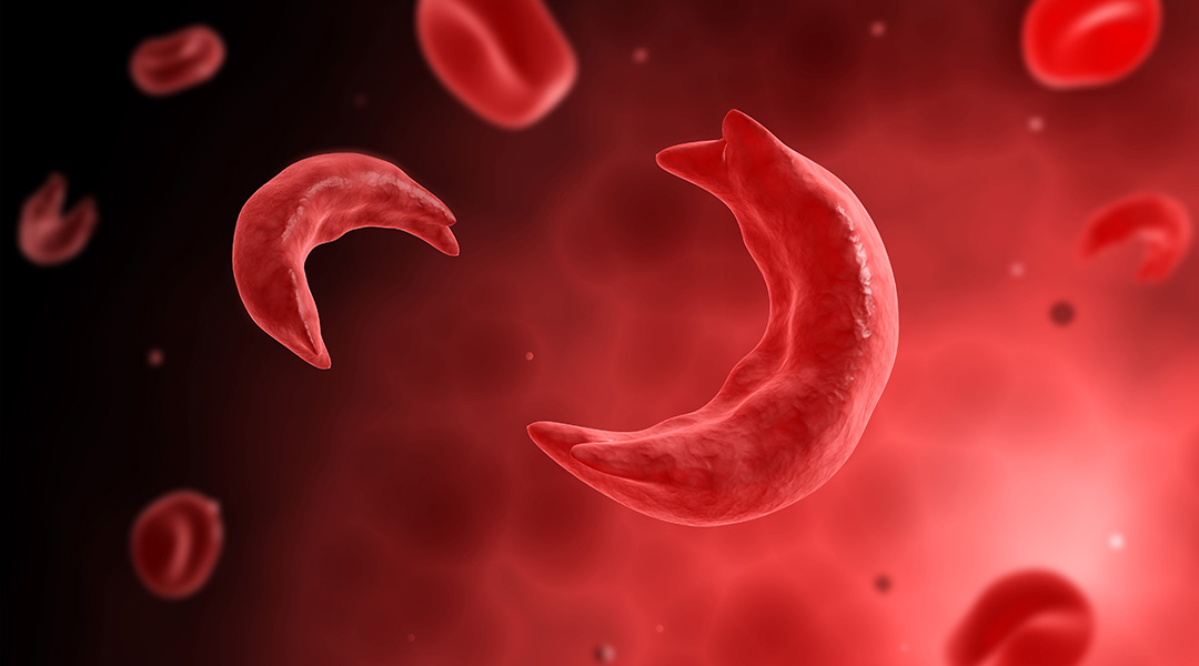 sickle cells causing anemia disease
