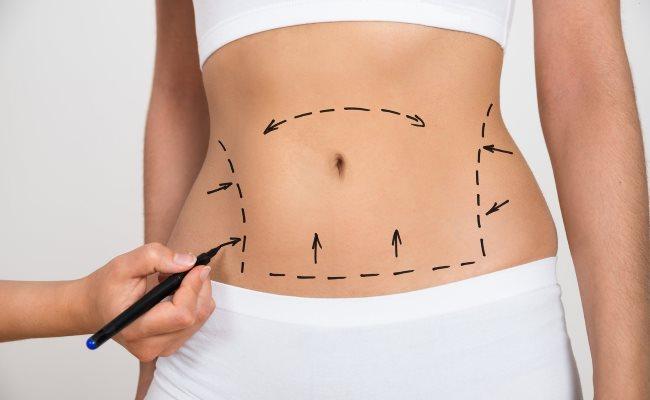 Tummy-Tuck-myths