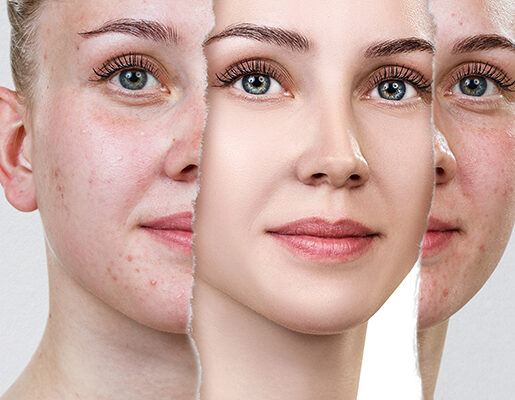 Acne-and-Pimple-Scars
