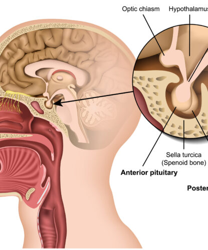 Diagnose Pituitary tumor