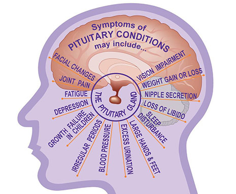 Pituitary Tumor Treatment in India