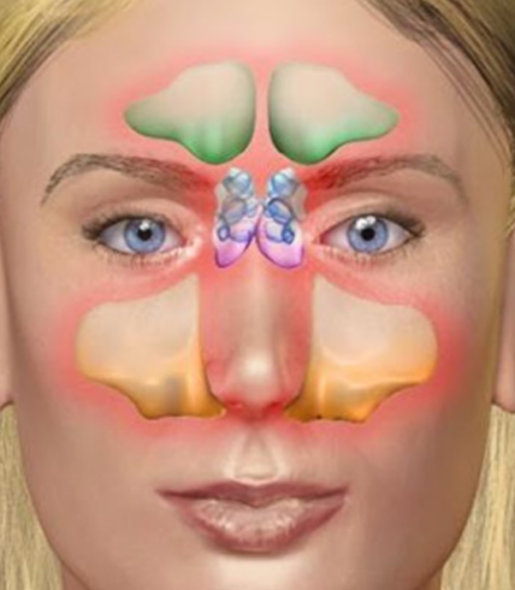 Nose and Sinus Disorders in India